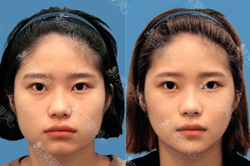 咬肌缩小方法有哪些?韩国江南三星咬肌缩小术效果明显吗