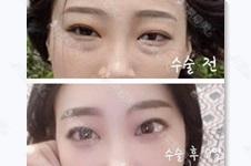 韩国眼袋案例分析,图片告诉你去眼袋手术能维持几年