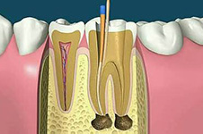 根管治疗后戴牙冠是套路还是真需求 5年没带冠人都什么样了