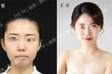 为何女艺人更青睐下颌整形?韩国迪美讲解下巴影响有多大