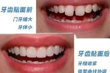 牙缝宽大修复有妙招:补牙、矫正、烤瓷牙、贴面、种植牙
