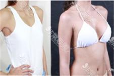泰国slcclinic医院凭什么风靡国内外?隆胸手术性价比真的高么