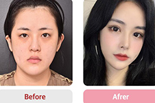 韩国VG百利酷官网案?例公布,真人眼鼻轮廓修复3个月效果!