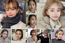 韩国脸本脸骨整形轮廓手术优势详解,另附官网案例对比照