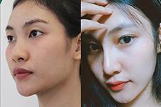 泰国lelux医院隆鼻怎样?案例图告诉你是否审核符合国人审美