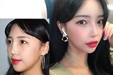 记录贴:我在韩国玛博尔医院做鼻修复180天变化经历!