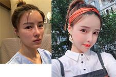 韩国金钟润做双鄂真人照片记录,初期大长脸术后少女感十足!