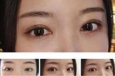 韩国眼角整形谁做的好?有几家医院做眼睛无留疤,露红困扰!