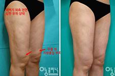 吸脂失败韩国医院怎么修复?皮肤不平凹陷疤痕就要这样改善!