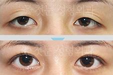 干货:韩国修复双眼皮厉害的医生名单,专攻各种疑难杂症眼!