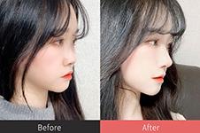 韓國整容要幾錢?我做福鼻改善效果及價格分享!