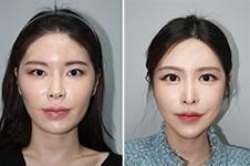 韩国现代美学整形医院磨骨真人案例分享,1~150天全过程分享!