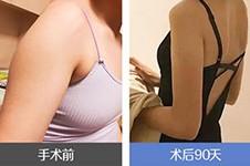 韩国吸脂要多少钱?价格表公布包含不同部位吸脂详细费用!