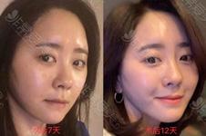 韩国拉皮手术对比照片,记录7天、12天图片展示