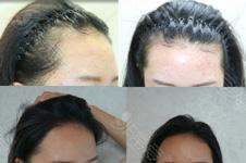 韩国forhair头发种植7个月效果变化图 成活率误区你知道多少?
