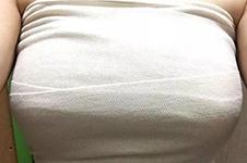 韩国隆胸做假体的还是多,技术和国内比差异也很大!