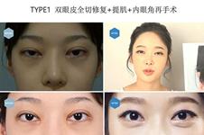韩国双眼皮修复口碑医院合集:必当归、eve、soonplus都可以