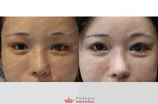 眼球凹陷怎么恢复饱满?哪里可以做眼球垫高手术?