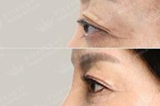 近视导致的突眼还能压回去吗?如果做突眼矫正手术危险吗?