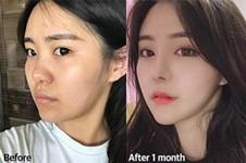 韩国鼻修复医院哪家好?韩国VG百利酷隆鼻效果怎么样?
