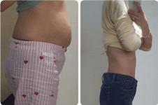 140斤全身抽脂能瘦多少?韩国365mc抽脂亲身经历分享