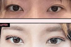 韩国双眼?皮修复哪家好?韩国人都去哪里?做眼修复