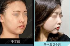 韩国修复鼻子好的医院是哪家?修复鼻子好的医生是谁
