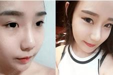 韩国鼻修复哪家好?韩国人鼻修复都去哪?