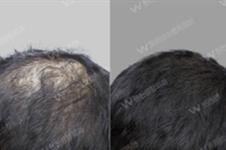 韩国毛发移植怎么样?哪个医院效果好?