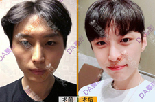 韩国男性轮廓整形案例集锦:为什么有人整后像韩星?