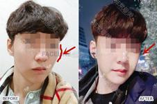 下颌角整形男案例分享:目前韩国趋势是留角降低颧骨!