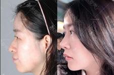 韩国uc首尔牙科突嘴手术好不好?有哪些风险在术前要知晓?