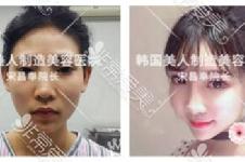 韩国宋昌奉做轮廓手术怎么样,磨骨30分钟花30000元值不值?