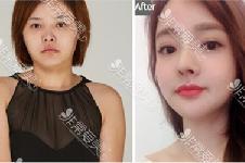 三组脸部整形对比照片示例:韩国欧佩拉改善面部轮廓怎么样
