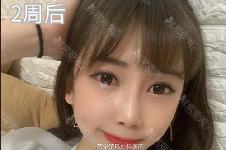 我在韩国芭堂整形医院做眼底脂肪重置恢复全过程+图片分享