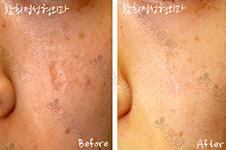 韩国凹陷性疤痕通常有这几种治疗方案,真皮再生术有用吗?