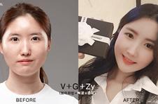 韩国牙科医院哪好?韩国有名的牙科医院推荐,内附收费价目表
