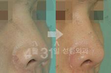 做完鼻子后萎缩可以修复好吗?有修复案例吗?