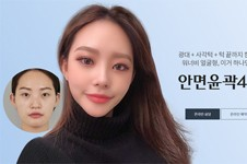 韩国削骨好的医院汇总,揭秘韩国削骨瘦脸要多少钱!