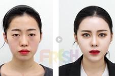 韩国脂肪填充修复专家揭秘,韩国脂肪填充失败修复医院!