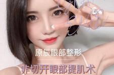 韩国修复双眼皮厉害的医生名单,都是韩国做眼睛出名的医生!