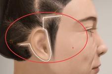 拉皮手术后会衰老更快吗?拉皮手术的危害有哪些?