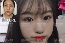 韩国做眼睛好的医生医院汇总,公布韩国做眼睛出名的医院!