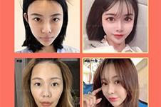 去韩国整容需要花多少钱?揭秘去韩国换脸大概要多少费用!