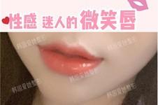 韩国唇部整形擅长的医院盘点,公布韩国做唇出名的医生名单!