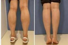 小腿粗壯又難減?韓國高蘭得醫院讓你輕松獲得小鳥腿