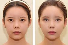 韩国TS整形外科轮廓手术效果怎么样?通过CT图告诉你~