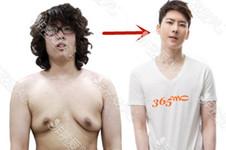 韩国365mc与世檀塔男科医院对于男性女乳症如何治疗?