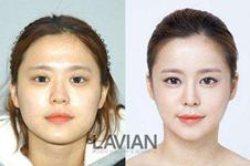 韩国拉菲安整形做脸型较好的医生是谁?他们在当地口碑如何