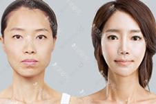 韩国做轮廓多少钱?单颧骨、下颌角和轮廓三件套比哪个划算